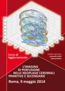L'imaging di perfusione nelle neoplasie cerebrali primitive e secondarie